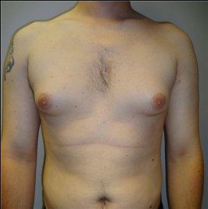 manhattan gynecomastia surgery before 5